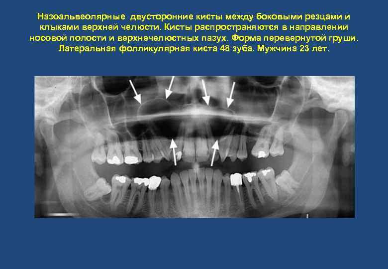 Назоальвеолярные двусторонние кисты между боковыми резцами и клыками верхней челюсти. Кисты распространяются в направлении