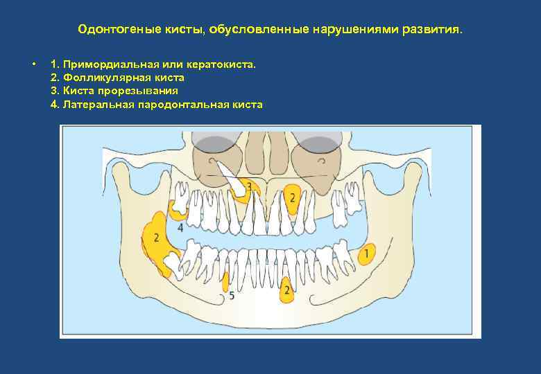 Одонтогеные кисты, обусловленные нарушениями развития. • 1. Примордиальная или кератокиста. 2. Фолликулярная киста 3.