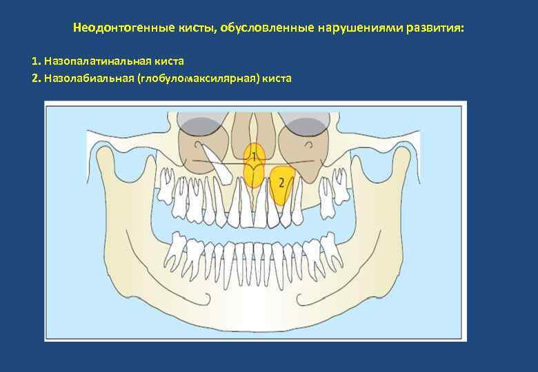 Неодонтогенные кисты, обусловленные нарушениями развития: 1. Назопалатинальная киста 2. Назолабиальная (глобуломаксилярная) киста