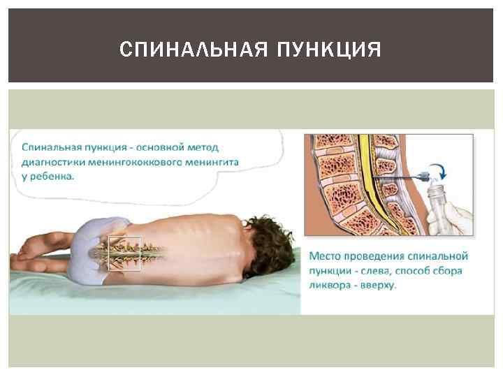 Поясничный прокол врач, как правило, осуществляет с ассистентом, который успокаивает и отвлекает ребенка, а также держит в неподвижном состоянии в момент входа иглы.