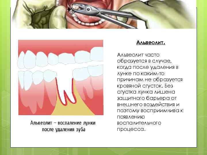 Альвеолит после удаления зуба как лечить в домашних условиях 322