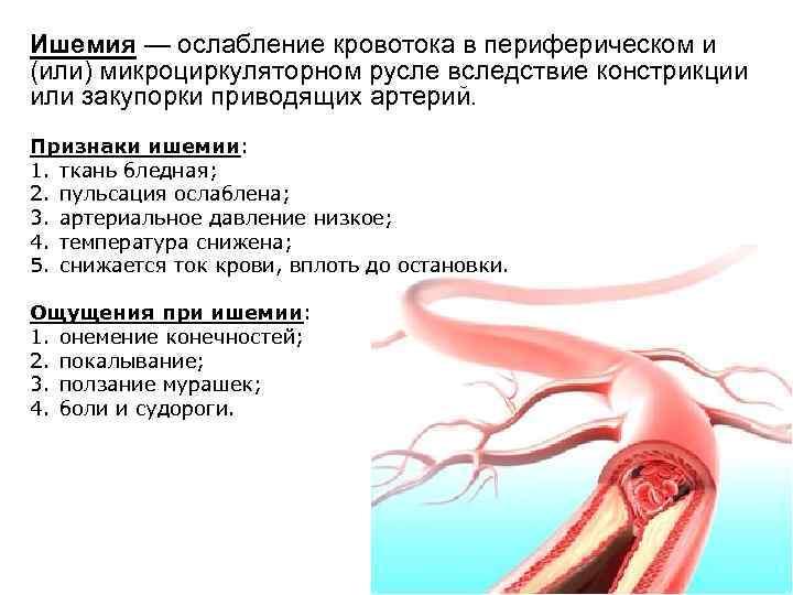 Ишемия — ослабление кровотока в периферическом и (или) микроциркуляторном русле вследствие констрикции или закупорки