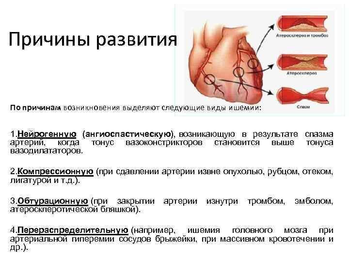 Причины развития По причинам возникновения выделяют следующие виды ишемии: 1. Нейрогенную (ангиоспастическую), возникающую в