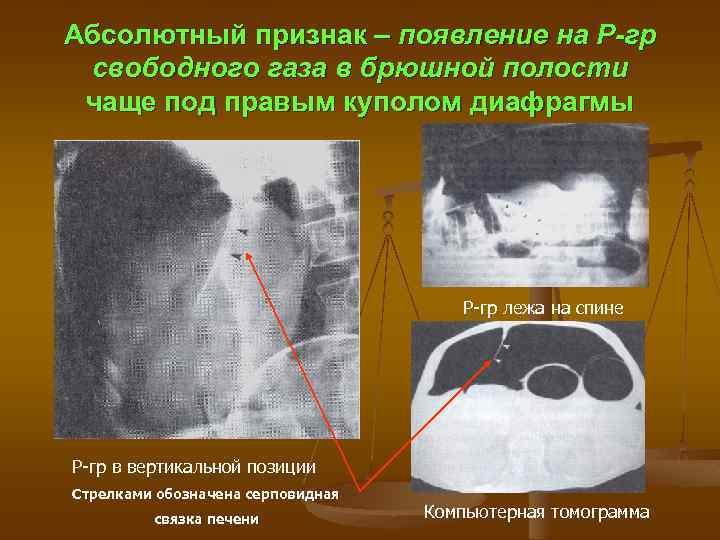 Абсолютный признак – появление на Р-гр свободного газа в брюшной полости чаще под правым