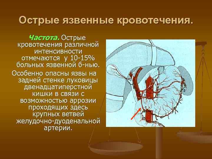 Острые язвенные кровотечения. Частота. Острые кровотечения различной интенсивности отмечаются у 10 -15% больных язвенной