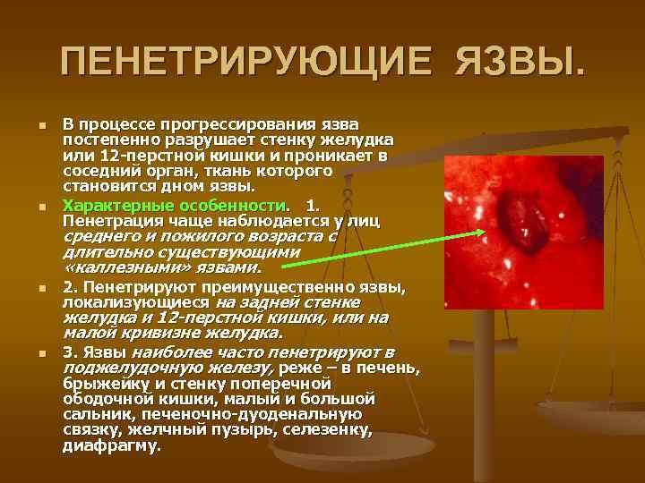 ПЕНЕТРИРУЮЩИЕ ЯЗВЫ. n n В процессе прогрессирования язва постепенно разрушает стенку желудка или 12
