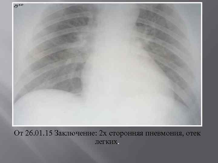 От 26. 01. 15 Заключение: 2 х сторонняя пневмония, отек легких.