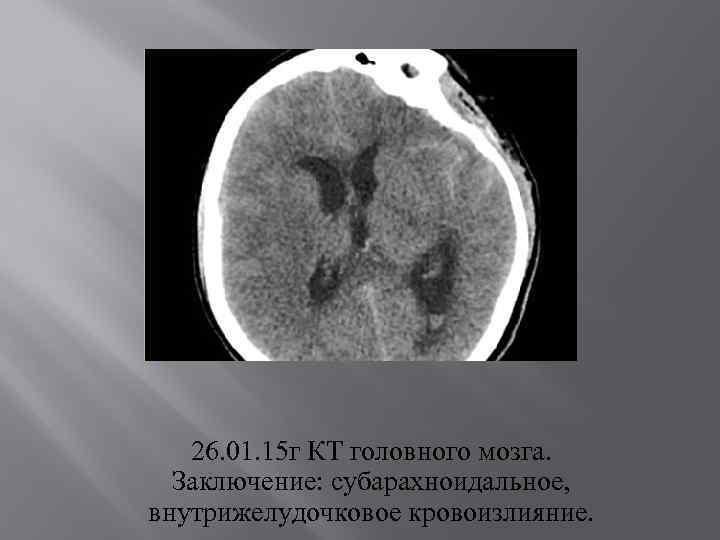 26. 01. 15 г КТ головного мозга. Заключение: субарахноидальное, внутрижелудочковое кровоизлияние.