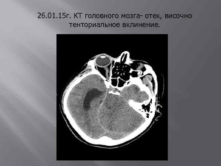 26. 01. 15 г. КТ головного мозга- отек, височно тенториальное вклинение.
