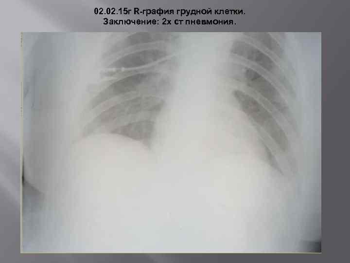 02. 15 г R-графия грудной клетки. Заключение: 2 х ст пневмония.