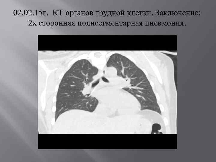 02. 15 г. КТ органов грудной клетки. Заключение: 2 х сторонняя полисегментарная пневмония.