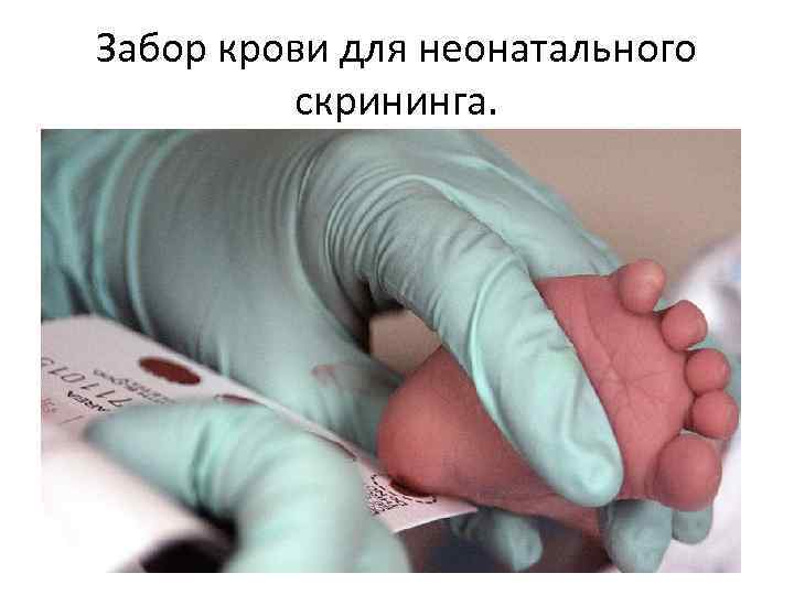 Забор крови для неонатального скрининга.