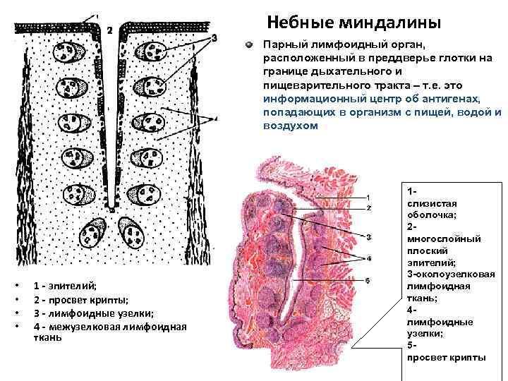 Небные миндалины Парный лимфоидный орган, расположенный в преддверье глотки на границе дыхательного и пищеварительного