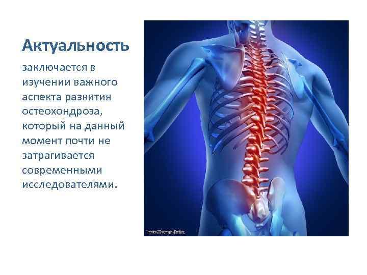 Актуальность заключается в изучении важного аспекта развития остеохондроза, который на данный момент почти не
