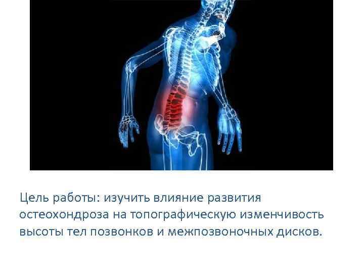 Цель работы: изучить влияние развития остеохондроза на топографическую изменчивость высоты тел позвонков и межпозвоночных