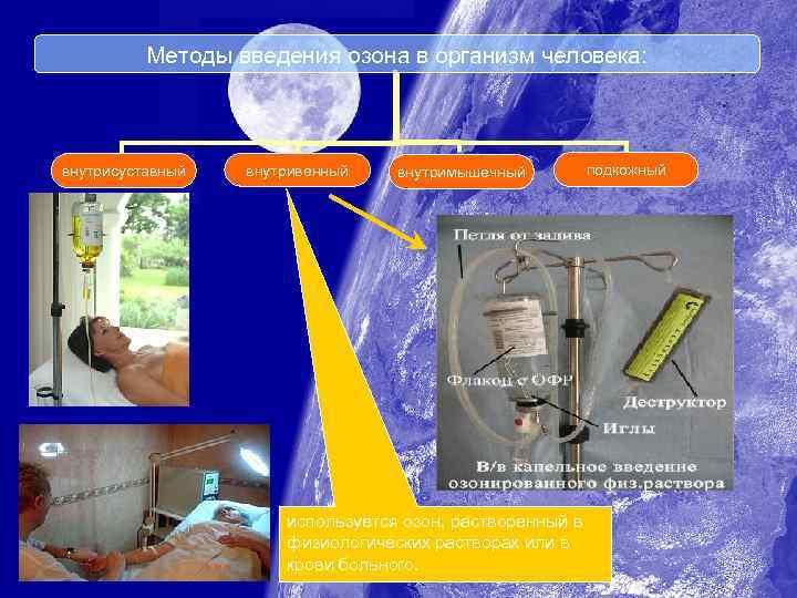 Методы введения озона в организм человека: внутрисуставный внутривенный внутримышечный используется озон, растворенный в физиологических