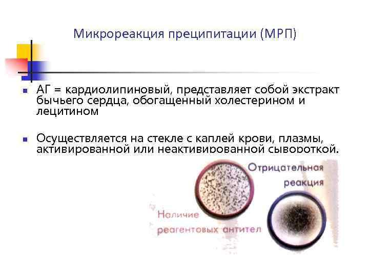 Крови микрореакция преципитации анализ кроликов лечение их и ушей заболевание фото у