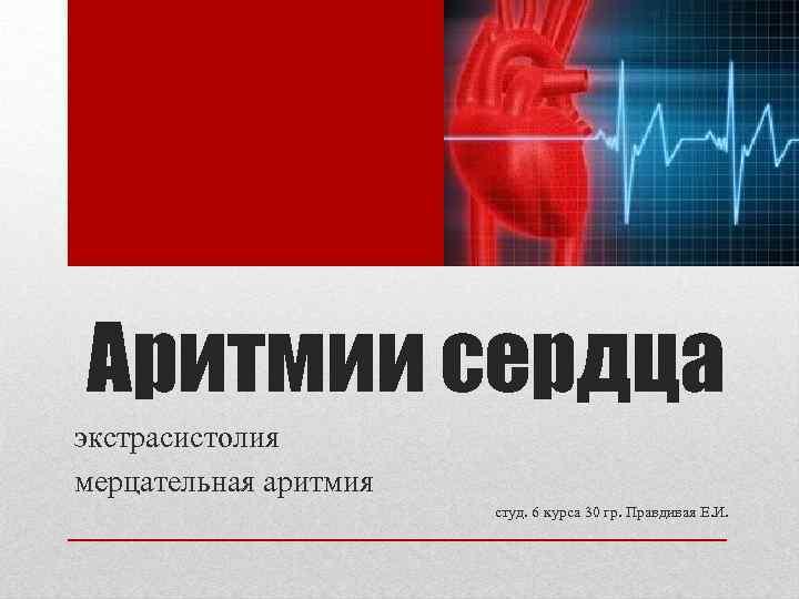 Аритмии сердца экстрасистолия мерцательная аритмия студ. 6 курса 30 гр. Правдивая Е. И.