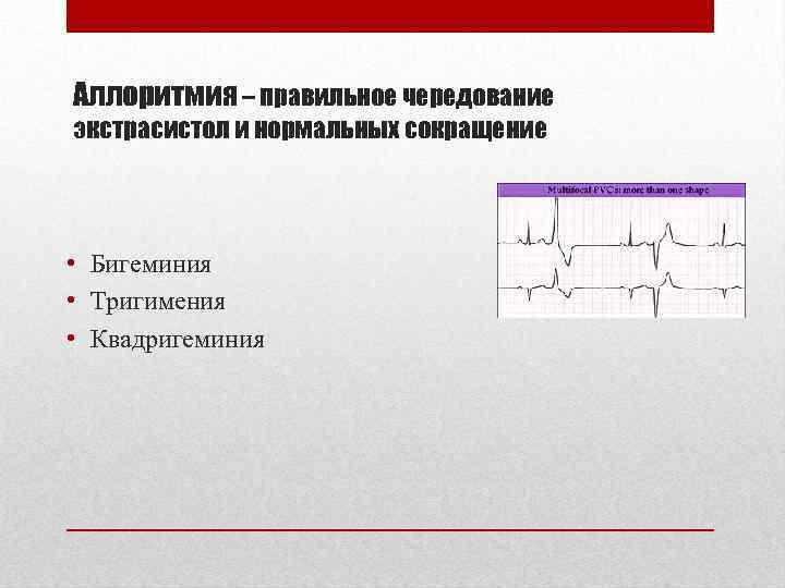 Аллоритмия – правильное чередование экстрасистол и нормальных сокращение • Бигеминия • Тригимения • Квадригеминия