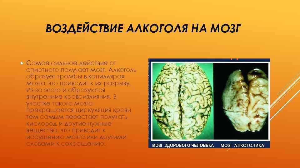 вариант картинки алкоголя на мозг гуссе персональный