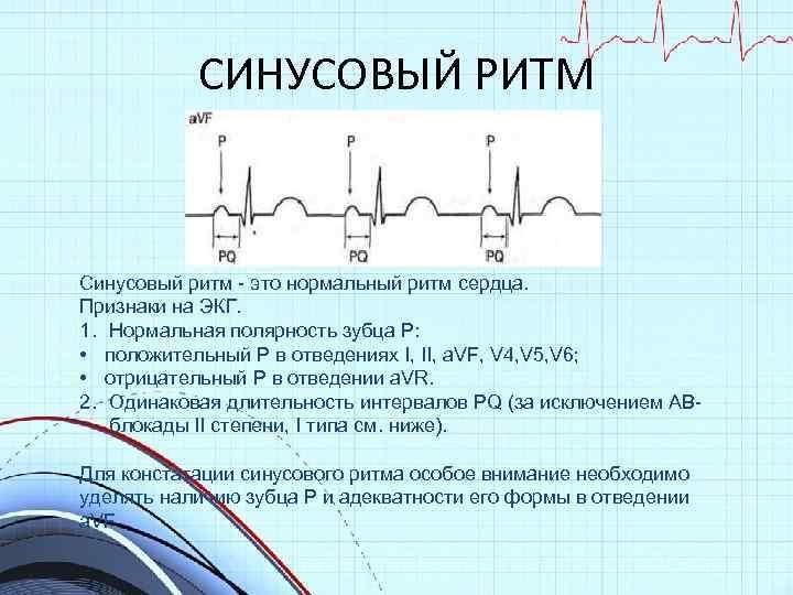 Синусовый ритм сердца норма у беременных 7