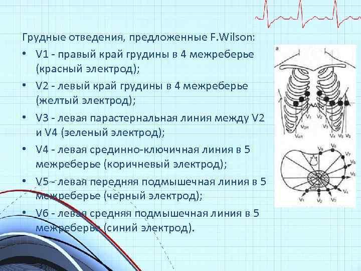 Грудные отведения, предложенные F. Wilson: • V 1 - правый край грудины в 4