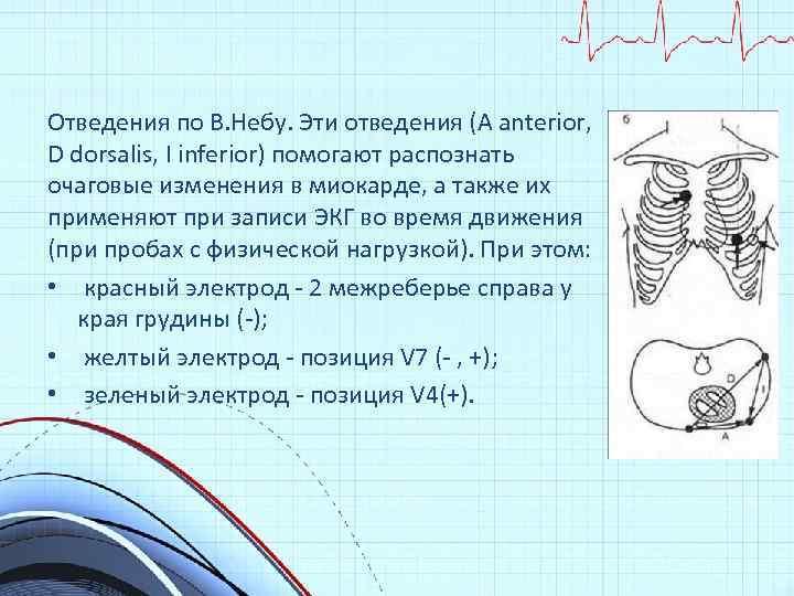 Отведения по В. Небу. Эти отведения (А anterior, D dorsalis, I inferior) помогают распознать