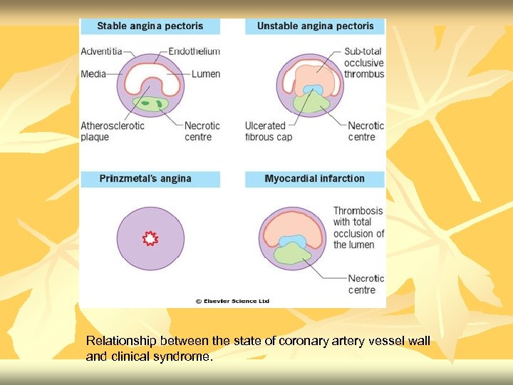 Relationship between the state of coronary artery vessel wall and clinical syndrome