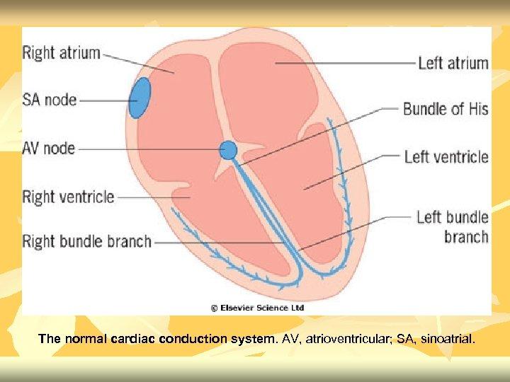 The normal cardiac conduction system. AV, atrioventricular; SA, sinoatrial.