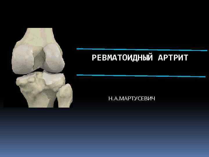 РЕВМАТОИДНЫЙ АРТРИТ Н. А. МАРТУСЕВИЧ