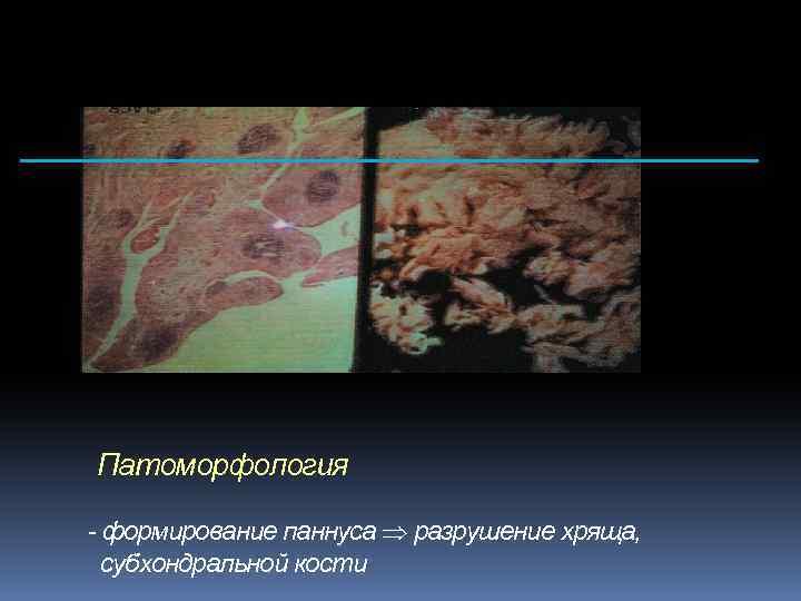 Патоморфология - формирование паннуса разрушение хряща, субхондральной кости