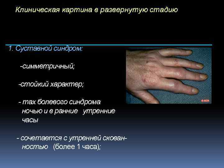Клиническая картина в развернутую стадию 1. Суставной синдром: -симметричный; -стойкий характер; - max болевого