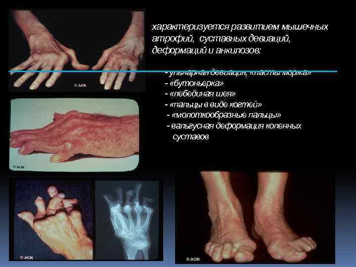 характеризуется развитием мышечных атрофий, суставных девиаций, деформаций и анкилозов: - ульнарная девиация, «ласты моржа»