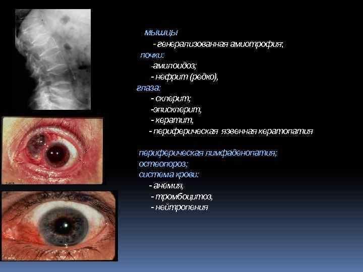 мышцы - генерализованная амиотрофия; почки: -амилоидоз; - нефрит (редко), глаза: - склерит; -эписклерит, -