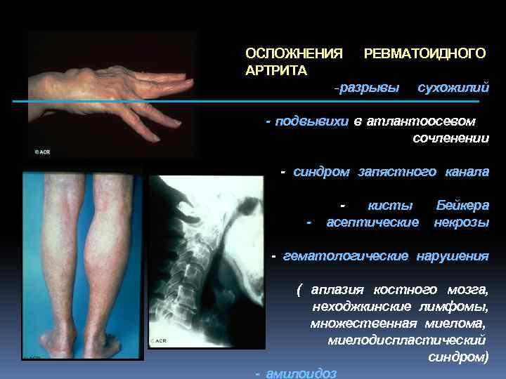ОСЛОЖНЕНИЯ РЕВМАТОИДНОГО АРТРИТА -разрывы сухожилий - подвывихи в атлантоосевом сочленении - синдром запястного канала