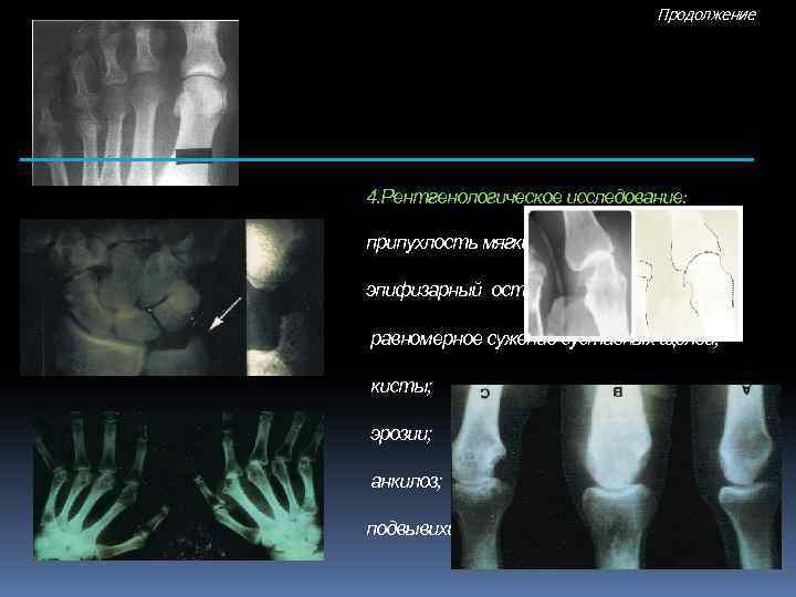 Продолжение 4. Рентгенологическое исследование: припухлость мягких тканей; эпифизарный остеопороз; равномерное сужение суставных щелей; кисты;