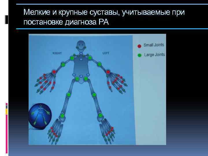 Мелкие и крупные суставы, учитываемые при постановке диагноза РА