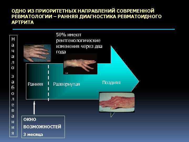 ОДНО ИЗ ПРИОРИТЕТНЫХ НАПРАВЛЕНИЙ СОВРЕМЕННОЙ РЕВМАТОЛОГИИ – РАННЯЯ ДИАГНОСТИКА РЕВМАТОИДНОГО АРТРИТА 50% имеют рентгенологические