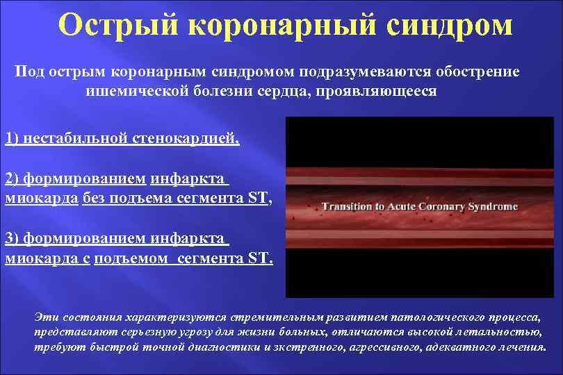 Острый коронарный синдром Под острым коронарным синдромом подразумеваются обострение ишемической болезни сердца, проявляющееся 1)