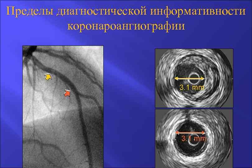 Пределы диагностической информативности коронароангиографии 3. 1 mm