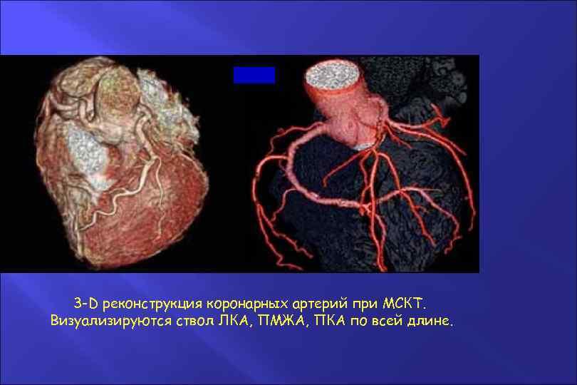 3 -D реконструкция коронарных артерий при МСКТ. Визуализируются ствол ЛКА, ПМЖА, ПКА по всей