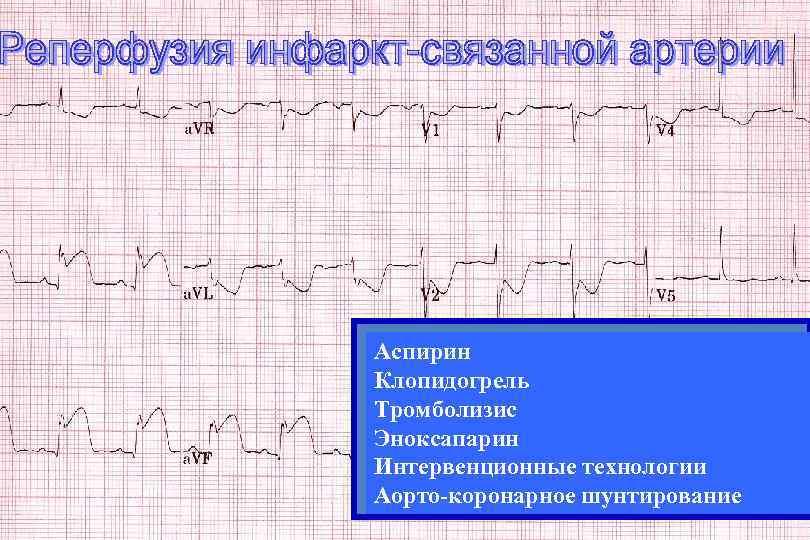 Аспирин Клопидогрель Тромболизис Эноксапарин Интервенционные технологии Аорто-коронарное шунтирование