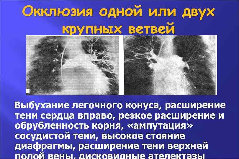 Окклюзия одной или двух крупных ветвей Выбухание легочного конуса, расширение тени сердца вправо, резкое