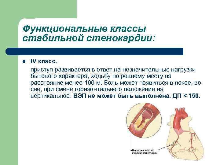 Функциональные классы стабильной стенокардии: l IV класс. приступ развивается в ответ на незначительные нагрузки
