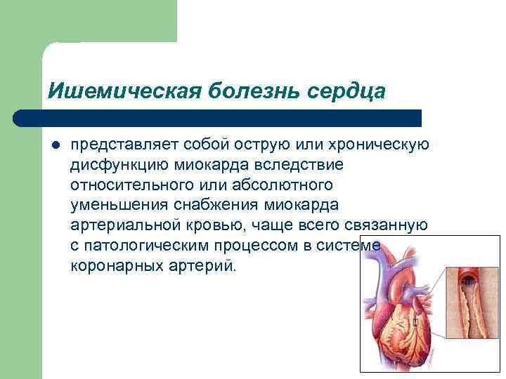 Ишемическая болезнь сердца l представляет собой острую или хроническую дисфункцию миокарда вследствие относительного или