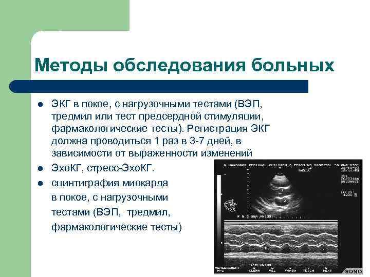 Методы обследования больных l l l ЭКГ в покое, с нагрузочными тестами (ВЭП, тредмил