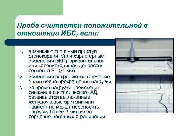 Проба считается положительной в отношении ИБС, если: 1. 2. 3. возникают типичный приступ стенокардии