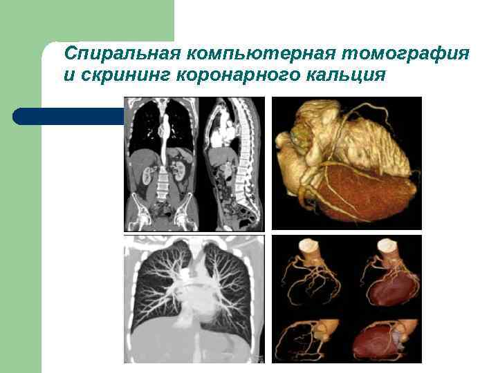 Спиральная компьютерная томография и скрининг коронарного кальция