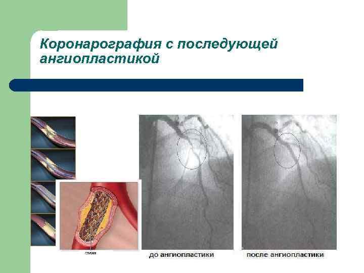 Коронарография с последующей ангиопластикой