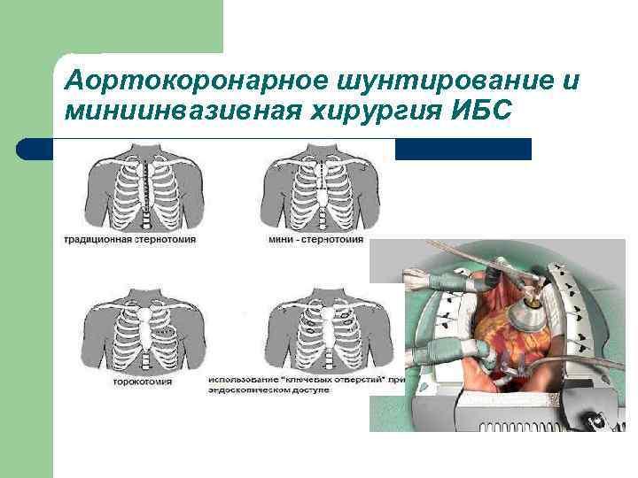 Аортокоронарное шунтирование и миниинвазивная хирургия ИБС